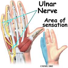 Carpal Tunnel Syndrome and the Ulnar Nerve